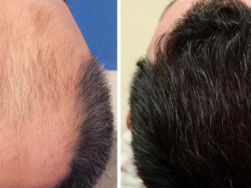 زراعة الشعر باستخدام طريقة (إف يو إي)