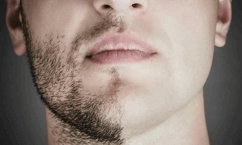 زراعة شعر الوجه