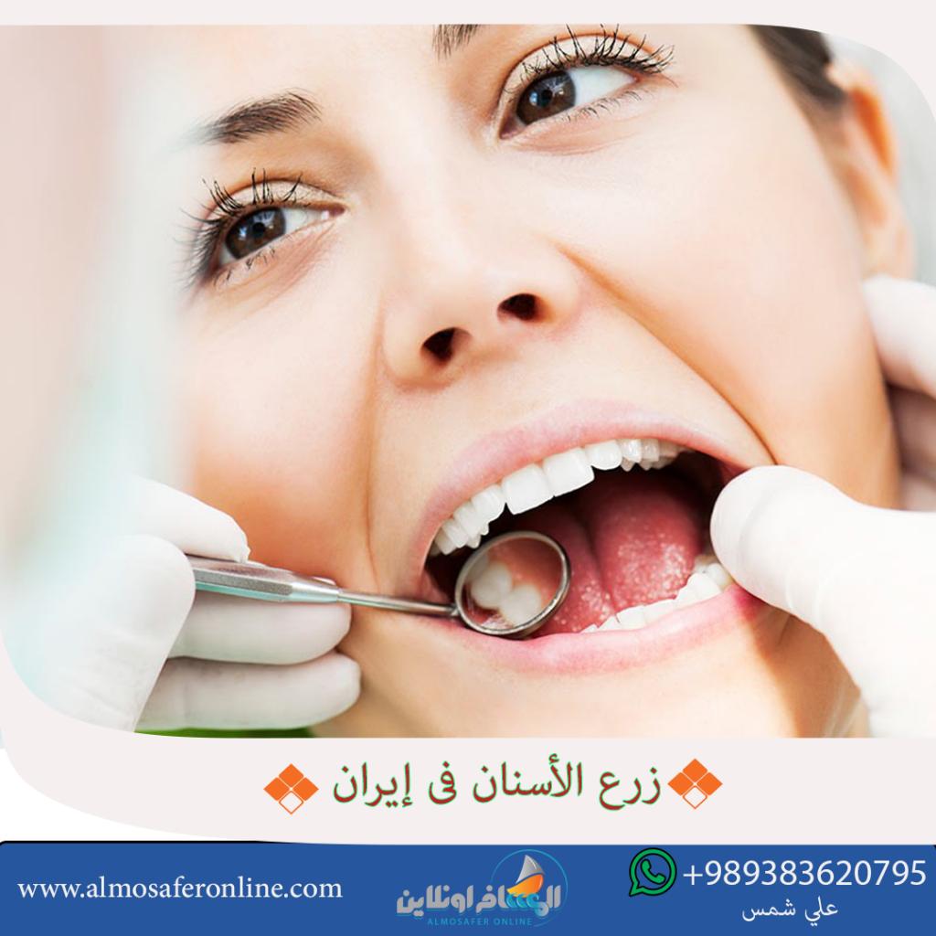 زرع الأسنان في إيران