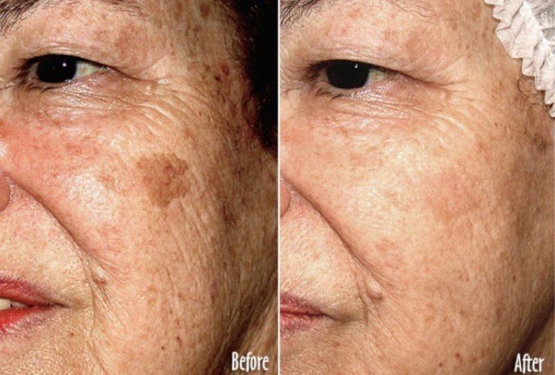 المرضى الذين يعانون من الكثير من الخطوط الدقيقة للوجه أو التجاعيد أو البقع بسبب أضرار أشعة الشمس أو تصبغ غير متساوي أو مسام مسدودة أو مشاكل في نسيج الجلد أو ندوب بسيطة يعتبرون مرشحين جيدين للجلد المجهري. المرضى الذين يعانون من حب الشباب قد تستفيد أيضا من هذه العلاجات. يمكن للرذاذ اللطيف من البلورات الدقيقة مساعدة الأفراد على القضاء على عيوب الجلد أو تحسينها وكذلك حالتها وإزالة خلايا الجلد الميتة والتالفة لتطوير بشرة جديدة وجديدة.