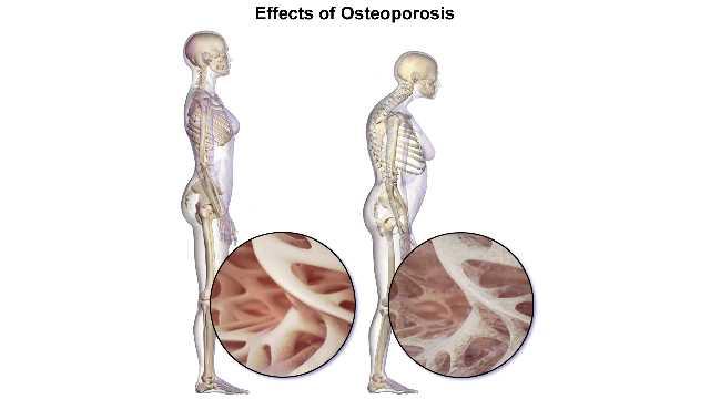 علاج مرض هشاشة العظام في إيران