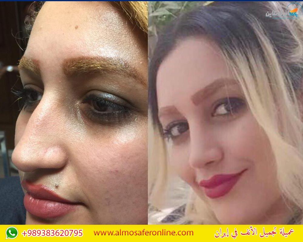 عميلة تجميل الأنف في إيران