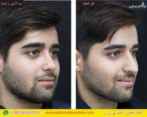 تجميل الأنف للرجال في إيران
