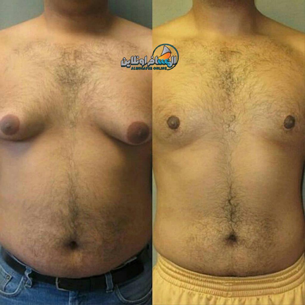 عمليات تجميل الثدي في إيران