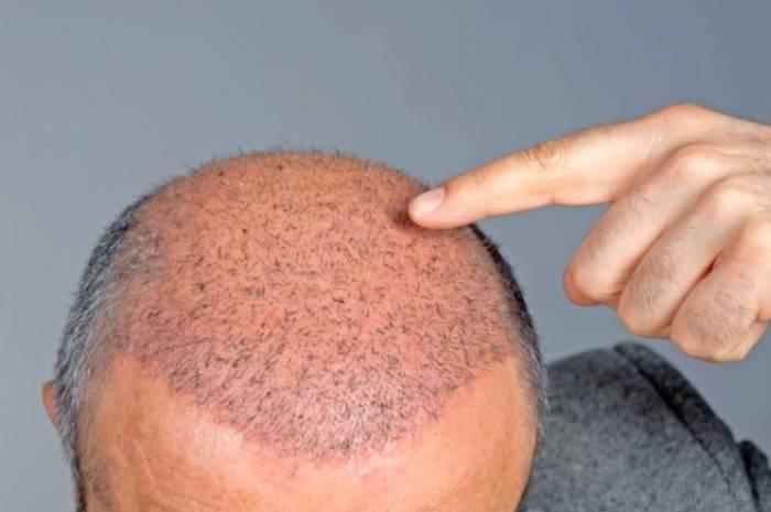 أفضل طريقة لزرع الشعر في إيران