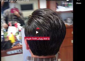 احدث طريقة لاستعادة الشعر بدون جراحة