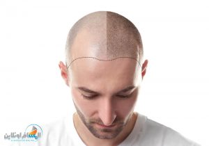 افضل طبيب زراعة الشعر في إيران