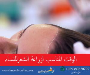 الوقت المناسب لزراعة الشعرللنساء
