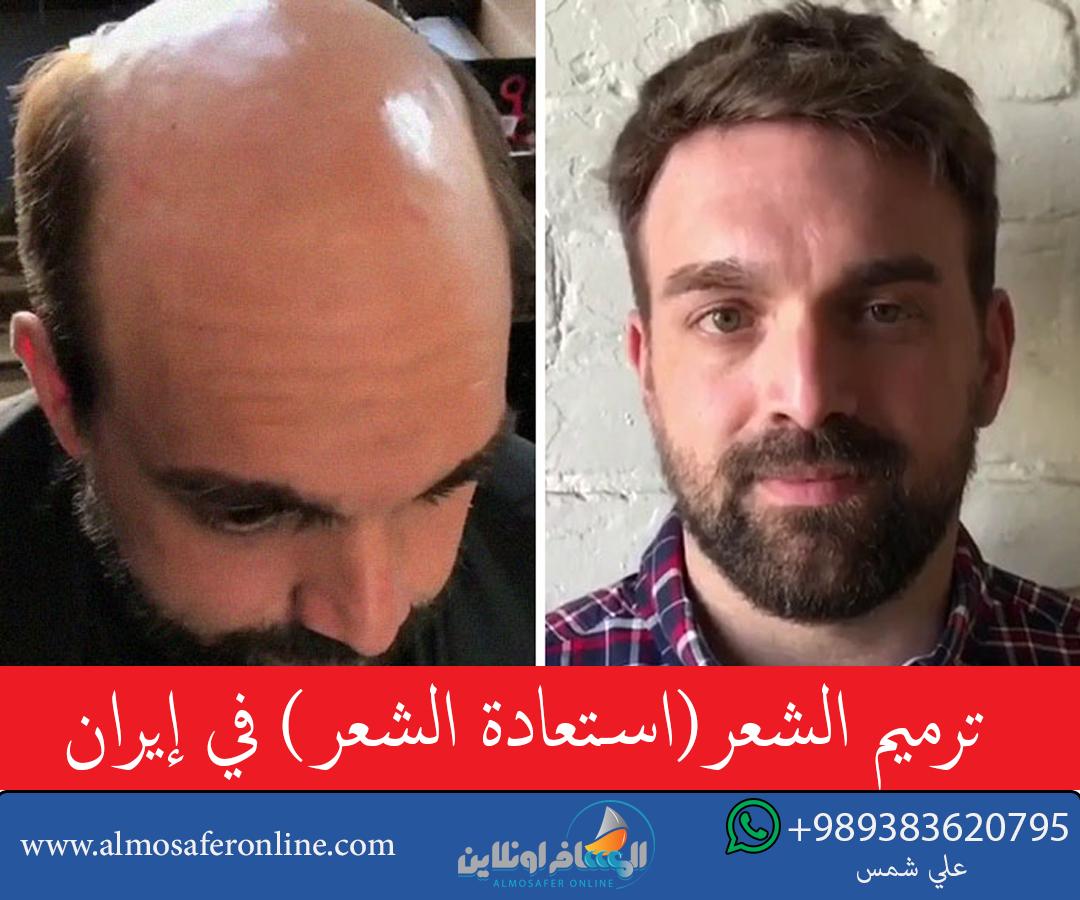 ترميم الشعر(استعادة الشعر) في إيران