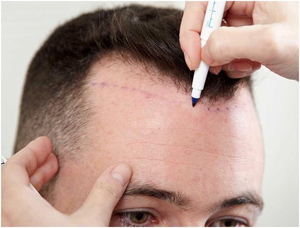تقنيات جديدة لزراعة الشعر في إيران