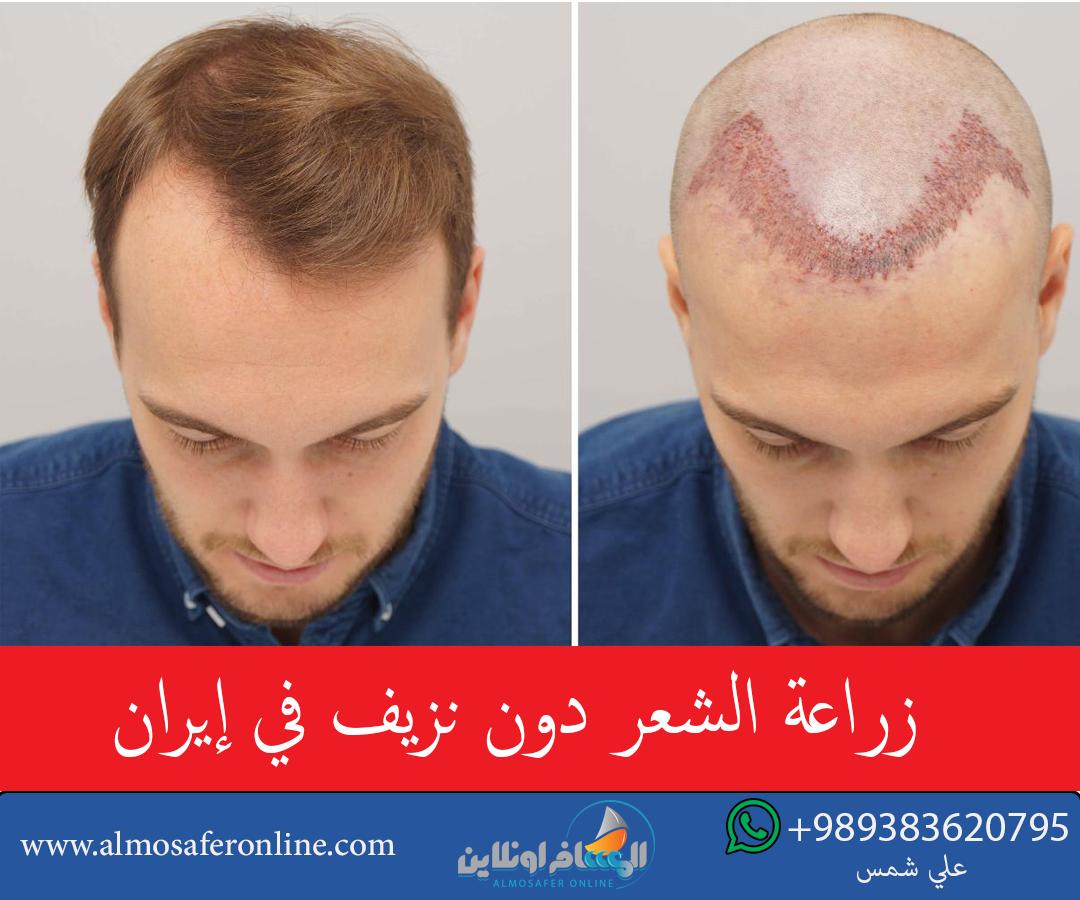 زراعة الشعر دون نزيف في إيران