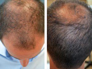 زراعة الشعر في إيران لمرضى الصدفية