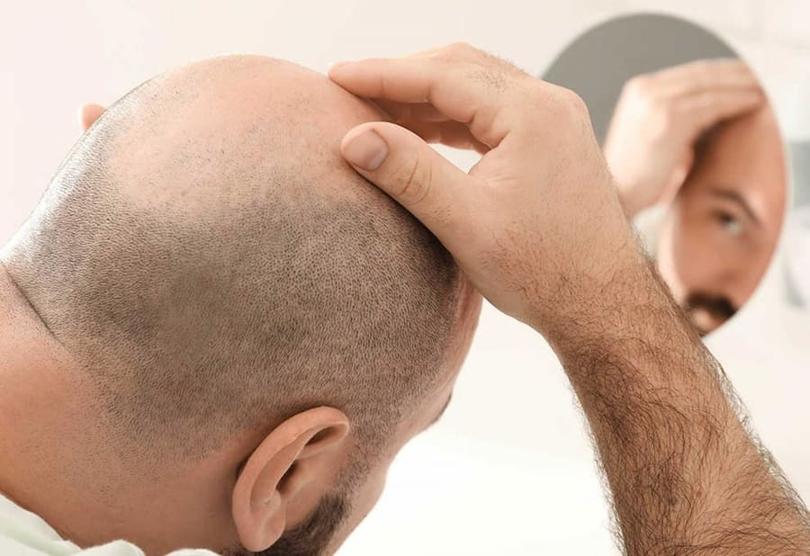 زراعة الشعر في إيران لمرضى القلب