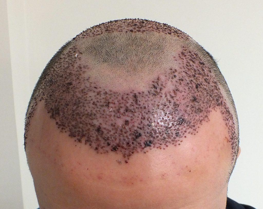 زرع الشعر(زراعة الشعر) التلقائي في إيران- زراعة الشعر في الأهواز