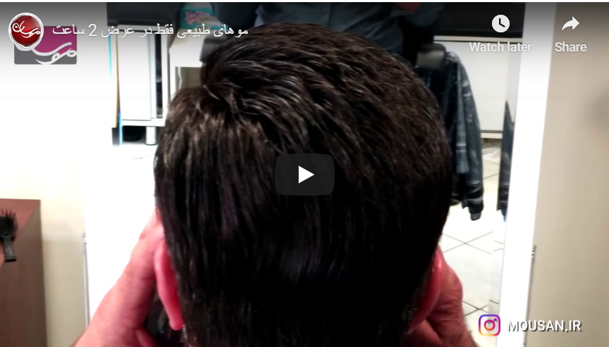 زرع الشعر الطبيعي في إيران في ساعتين فقط