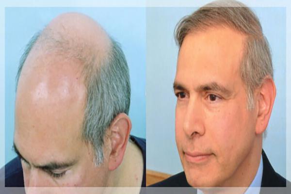 زراعة الشعر في أصفهان