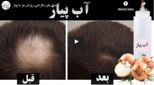 علاج لا يصدق لتساقط الشعر مع البصل