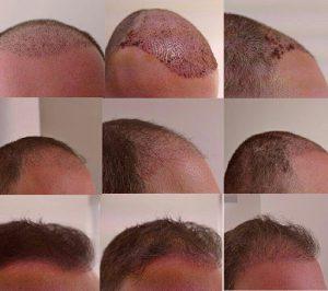 كيف ينمو الشعر المزروع في إيران؟