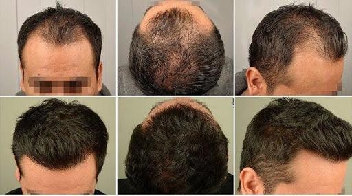 ما هي استعادة الشعر الطبيعي HRT؟