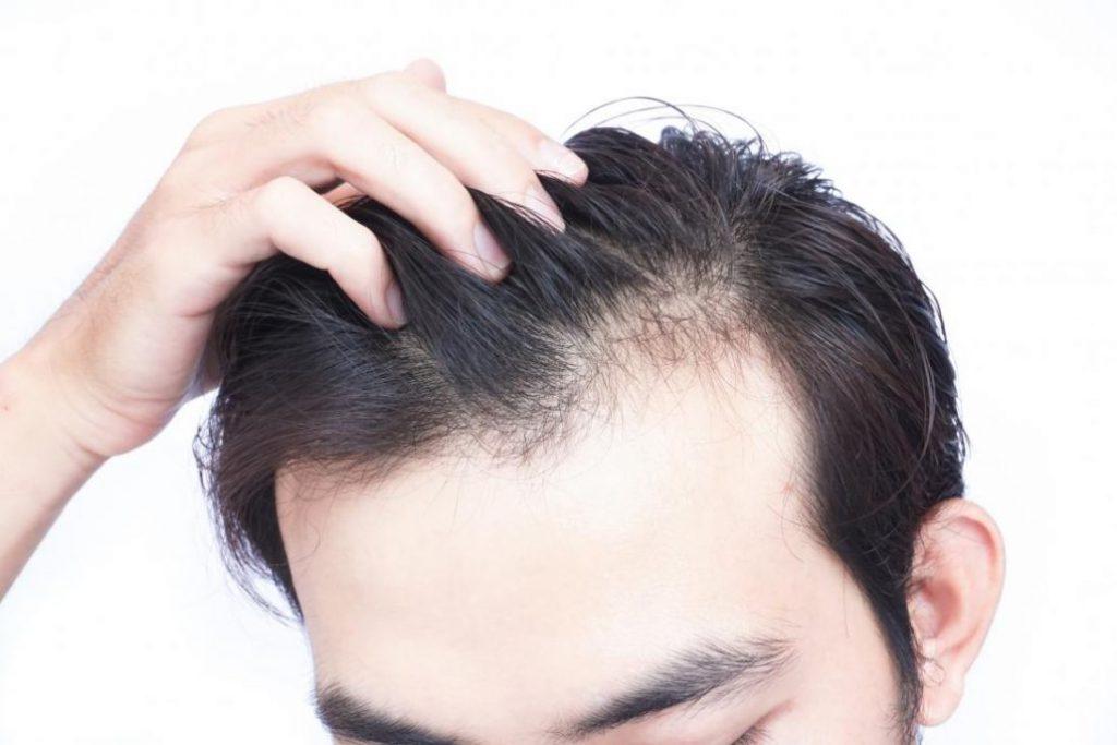مخاطر زرع الشعر الرخيص في إيران
