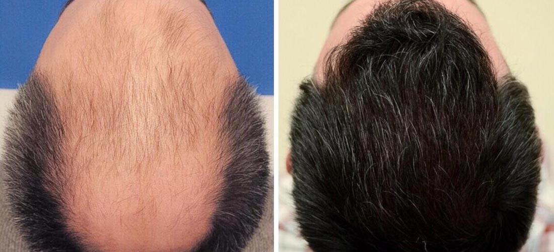 هل زراعة الشعر في إيران مضرة للصحة؟