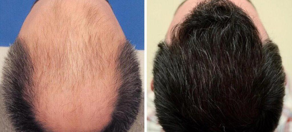 ما هي أفضل وأحدث تقنية لزرع الشعر في إيران