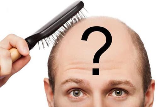 الأسئلة المتداولة حول زراعة الشعر في إيران