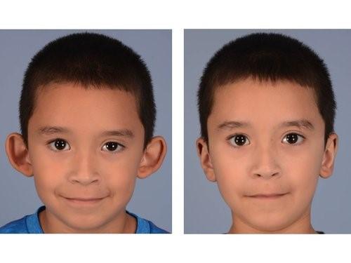 جراحة تصحيح الأذن (تجميل الأذن) في إيران
