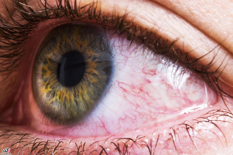جراحة عين البحيرة في إيران -جراحة العيون في إيران