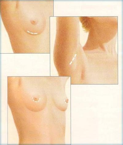 عملية جراحة الثدي