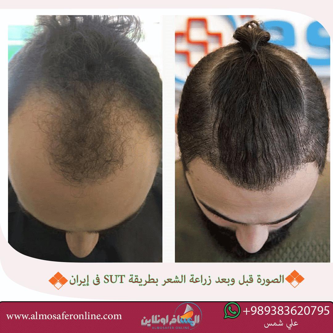 زراعة الشعر بطريقة SUT في إيران
