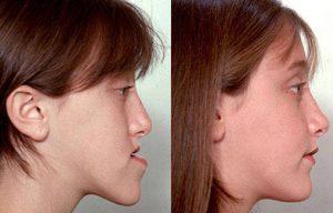 جراحة الوجه والفكين في إيران