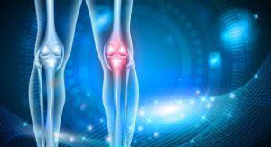 عملية تبديل مفصل الركبة في إيران