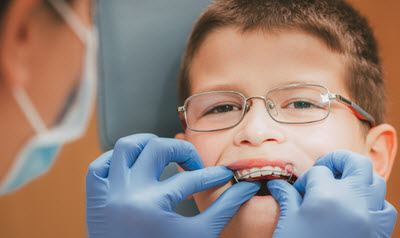 افضل سن لتقويم الاسنان في شيراز