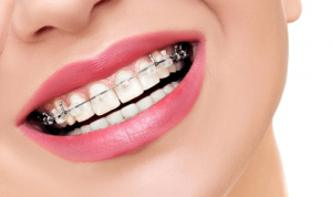 الرعاية اللازمة بعد تقويم الأسنان في إيران