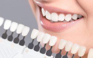 تركيب الأسنان في إيران