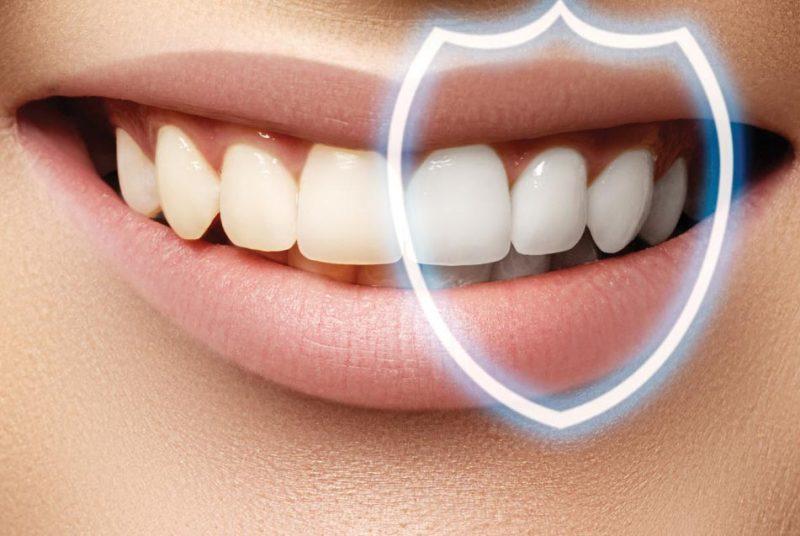 تحجيم الأسنان في إيران