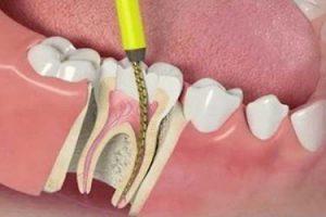 علاج الجذور وأعصاب الأسنان في إيران