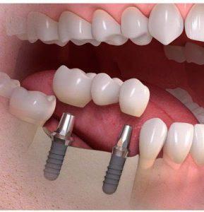 زرع الأسنان بدون جراحة اللثة في إيران