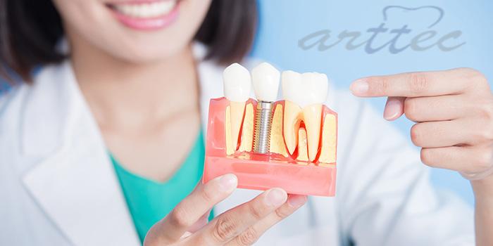 هل زراعة الأسنان في إيران دائمة؟