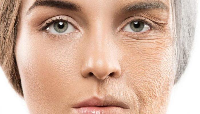 أسباب وطرق علاج تجاعيد بشرة الوجه في إيران