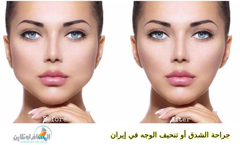 جراحة الشدق أو تنحيف الوجه في إيران