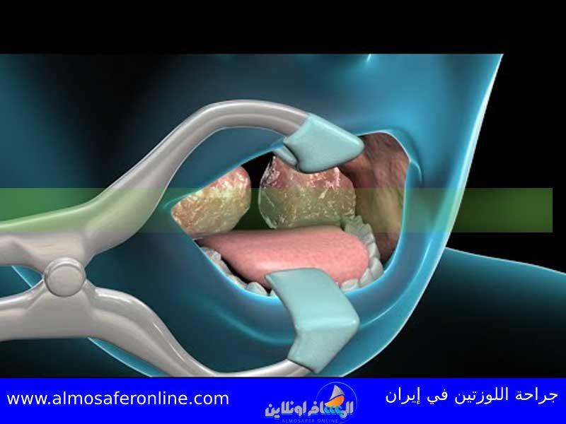 جراحة اللوزتين في إيران