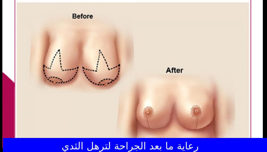 رعاية ما بعد الجراحة لترهل الثدي
