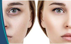 العلاج الفوري للدمامل والهالات السوداء تحت العينين