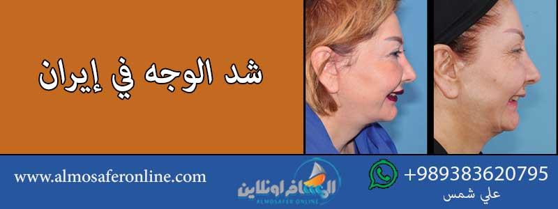 شد الوجه في إيران