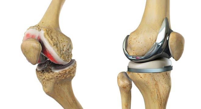 جراحة مفصل الركبة في شيراز