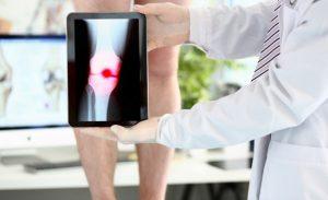 أفضل أطباء علاج آلام الركبة (أخصائي الركبة) في إيران