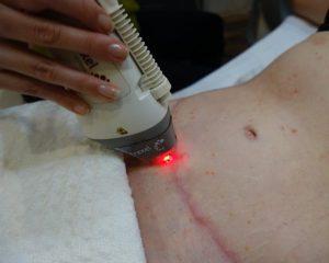 أفضل جراح شد البطن في إيران