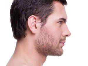 جراحة تجميل أنف الرجال في إيران